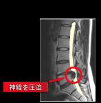 腰椎椎間板ヘルニアMRI
