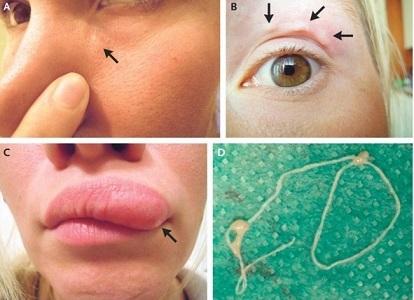 32歳の女性患者は顔中を動き回る腫れの自撮りを続けた。その正体は寄生虫だった