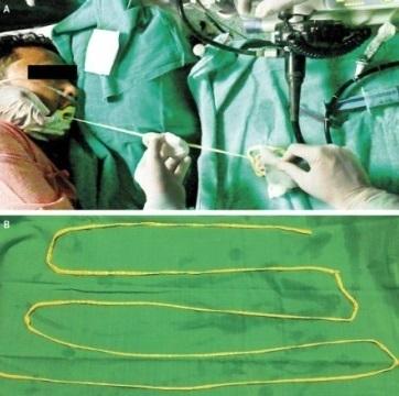 インドで体長180センチを超す寄生虫