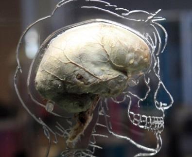 女性の頭部に入り込んだゴキブリを生きたまま頭蓋骨(ずがいこつ)の間から取り出す処置を行ったことを