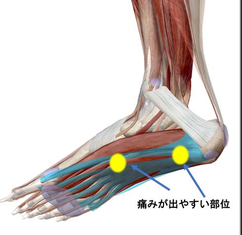 足底腱膜炎1