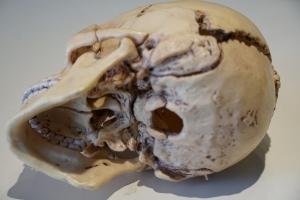 頭蓋骨内部
